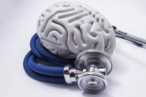 Demenza alzheimer