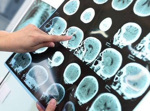 Disturbo neurocognitivo e demenza