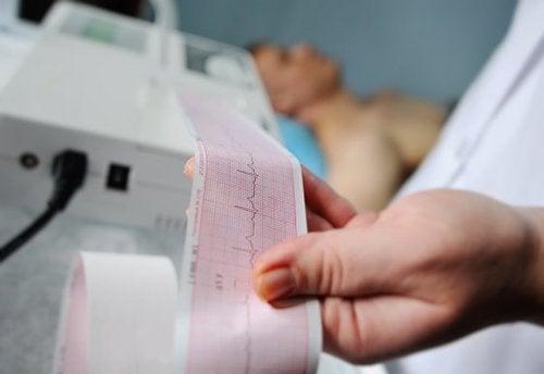 Come leggere un elettrocardiogramma