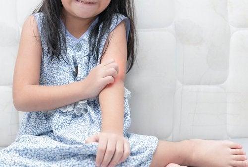 La psoriasi nei bambini: come trattarla?