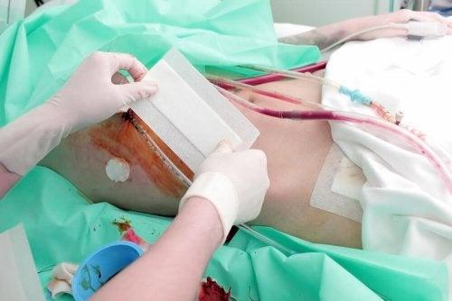 Applicazione del cerotto dopo il trapianto di rene