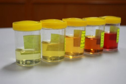 Alterazioni della diuresi: aspetti da considerare