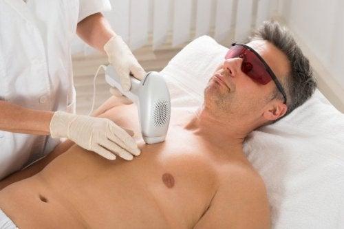 Depilazione laser su uomo