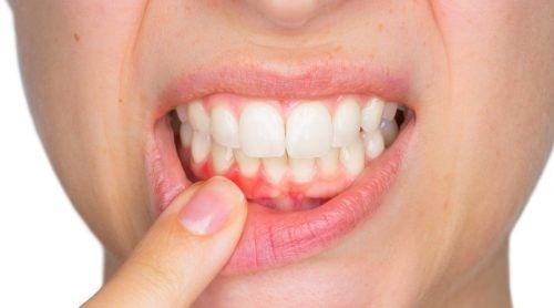Ascesso dentale: che cos'è e come si cura