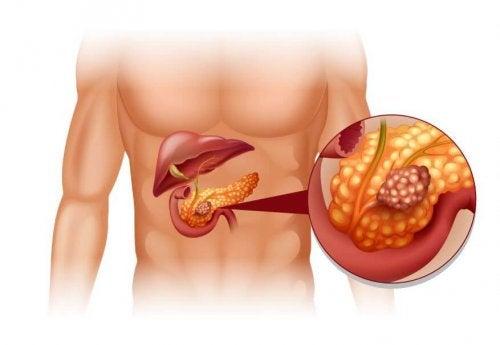 Tumori neuroendocrini pancreatici e trattamento