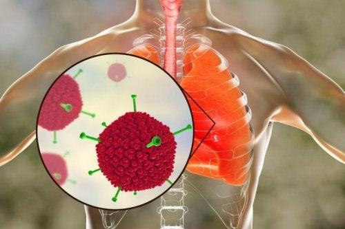 Adenovirus della sindrome respiratoria acuta grave