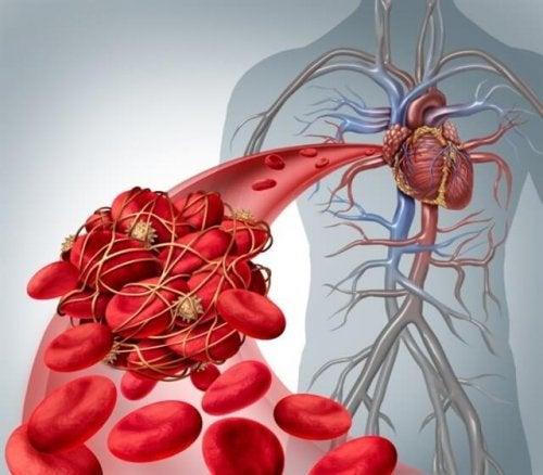 Coaguli di sangue