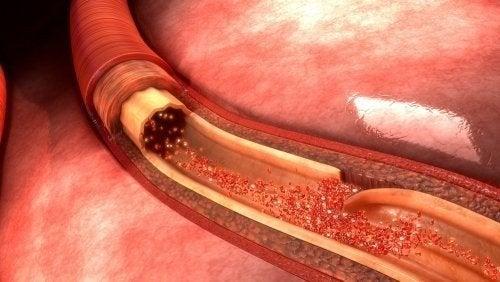 Dissezione aortica: cosa è e in cosa consiste