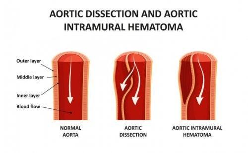 Dettaglio di dissezione aortica