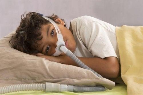 Apnea ostruttiva del sonno nei bambini