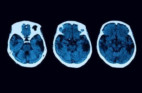 Atrofia corticale posteriore: diagnosi e trattamento