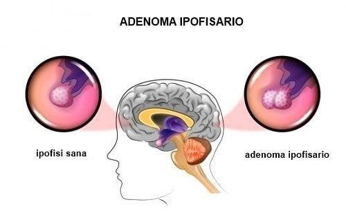 Tumori dell'ipofisi: cause e sintomi