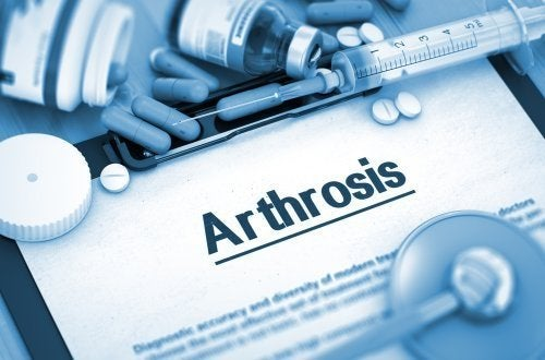 Artropatia degenerativa: cause e sintomi