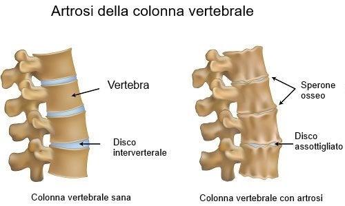 Artrosi della colonna vertebrale e colonna sana