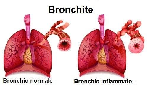 Tosse e dolore al petto possono essere dovute alla bronchite