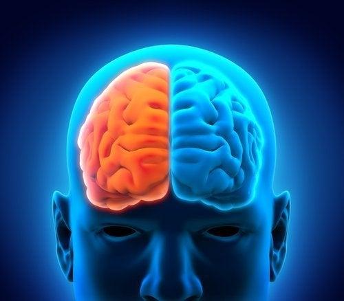Emisferectomia e decorso postoperatorio