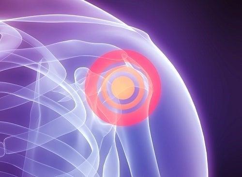 Dolore a causa della lesione della cuffia dei rotatori