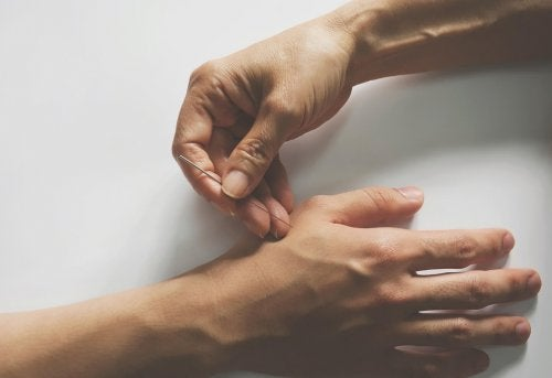 Punti dell'agopuntura