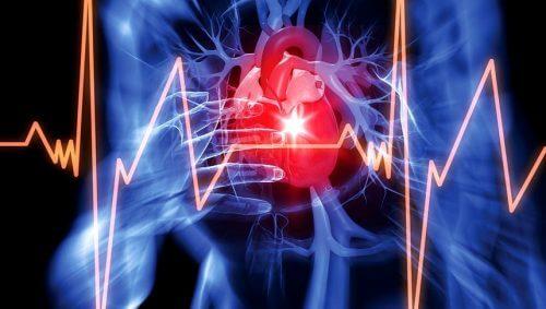 Elettrocardiogramma per rilevare il versamento pericardico