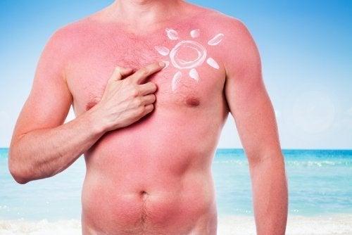Uomo con scottatura solare sul corpo