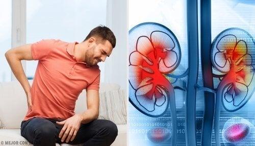 Uomo che prova dolore a causa di un ascesso renale