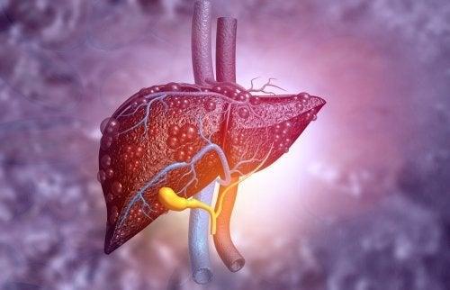 Atresia biliare del fegato