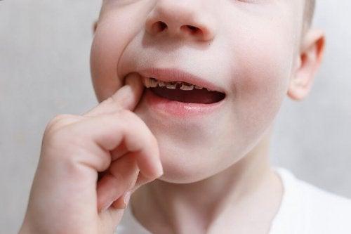 Bambino con una carie dentale