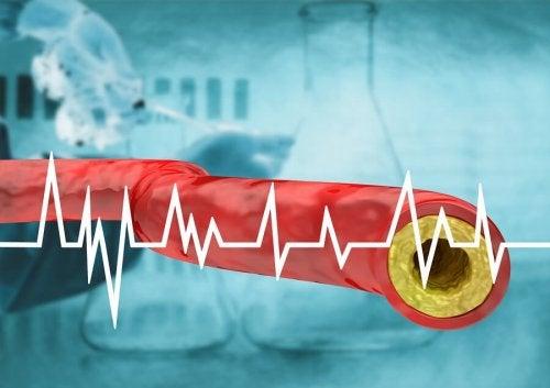 Prevenzione colesterolo