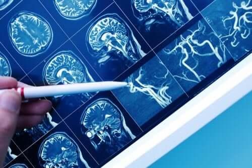 Demenza vascolare: come riconoscerla?