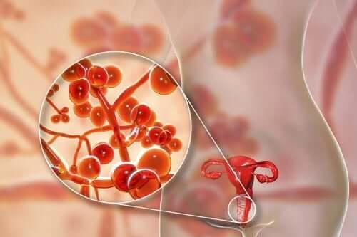 Micoplasma genitale: cause, sintomi e terapia