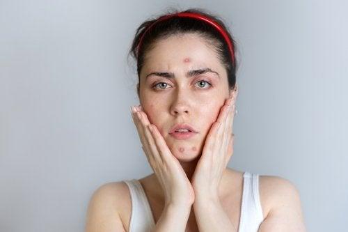 Ragazza con acne in viso