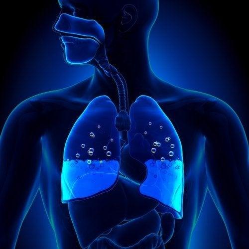 Edema polmonare: sintomi e cause