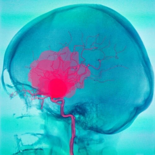 Emorragia cerebrale