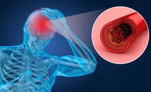 Apoplessia: sintomi e fattori di rischio