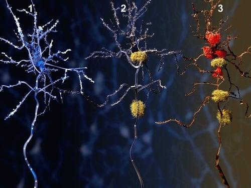 Evoluzione dell'Alzheimer