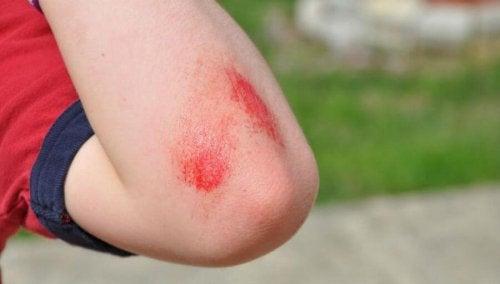 Come curare tagli e graffi sul gomito