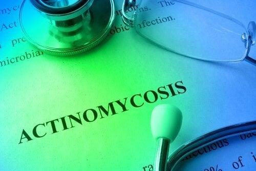 Actinomicosi: prevenzione e trattamento