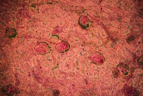 Tubercolosi renale: diagnosi e trattamento