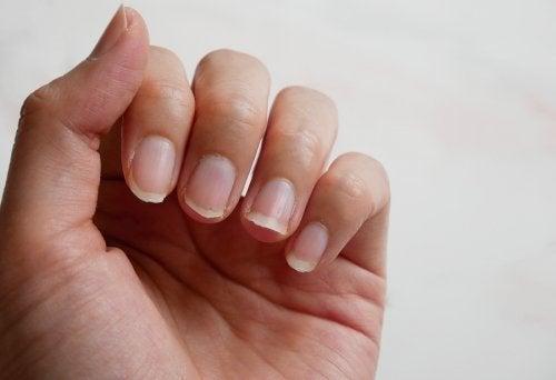 Trattare le unghie fragili con 4 ingredienti naturali