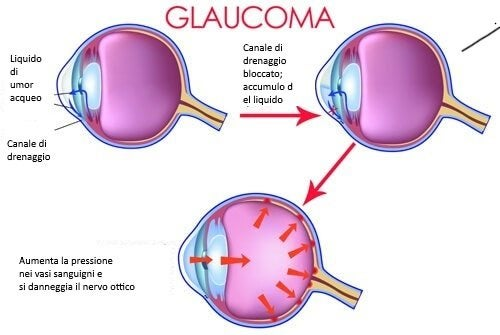 Descrizione del glaucoma