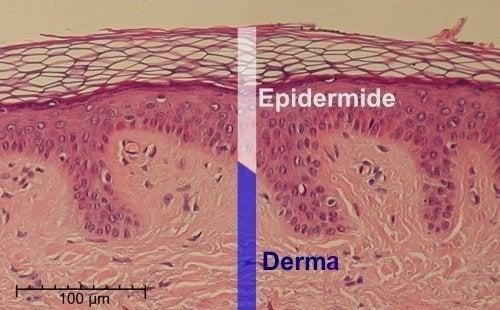 Epidermide e derma