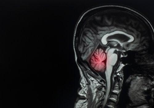 Metastasi cerebrale: definizione, cause e trattamento