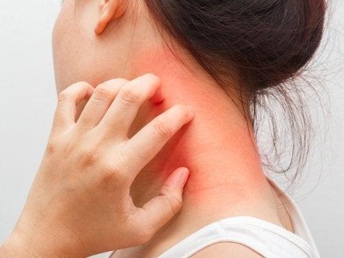 Donna con dermatite atopica al collo