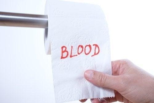Sangue nelle feci: quali sono le cause?