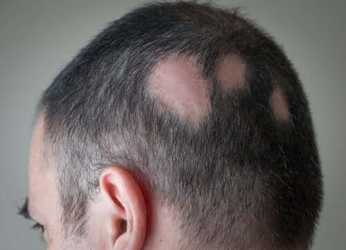Alopecia areata: sintomi, cause e trattamento