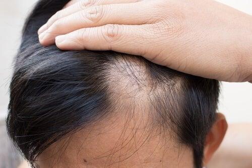 Alopecia malattia autoimmune
