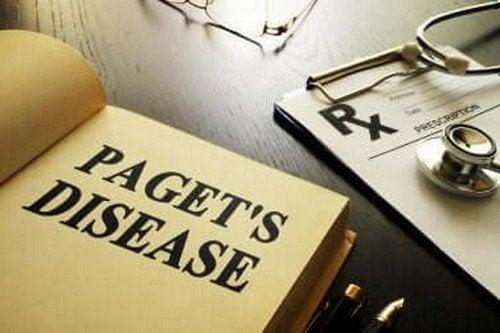 Morbo di Paget, tutto ciò che bisogna sapere