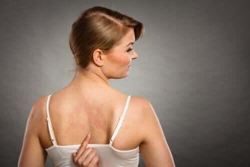 Donna con reazioni cutanee a causa della allergia agli additivi alimentari