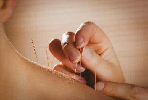 I benefici dell'agopuntura per la salute