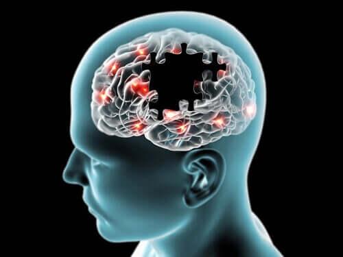Il cervello funziona grazie al glucosio